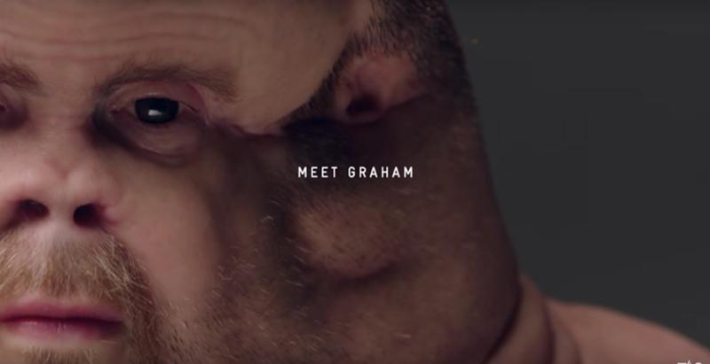Graham, l'essere umano evoluto che sopravvive agli incidenti stradali